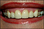 st clair shores mi veneers