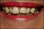 Veneers Before 1