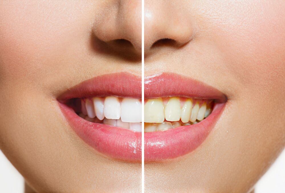 St Clair Shores MI Dentist | Stained Teeth